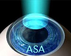 Northampton Lasik Faqs Is Lasik Right For You