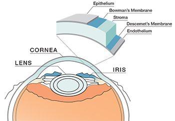 diagram corneal ulcers