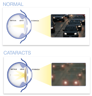 Cataract vs Normal Vision