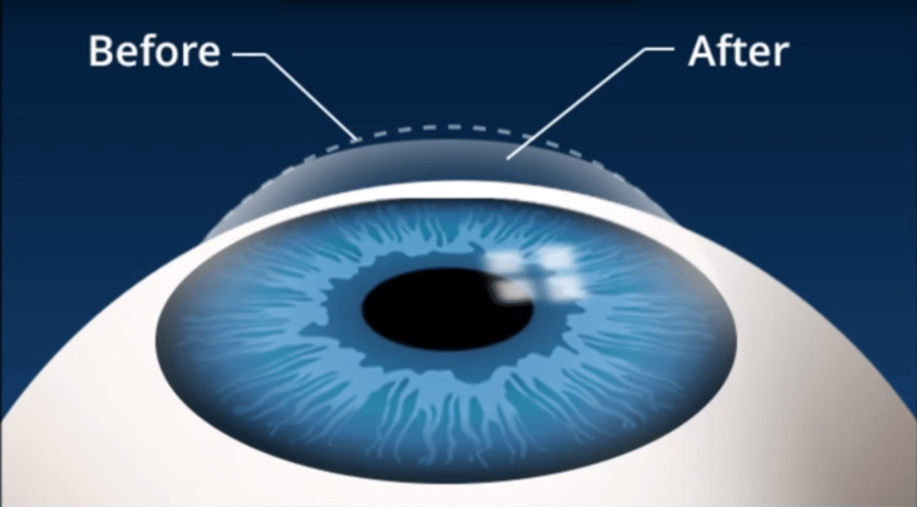 Eye Physicians Of Northampton Lasik Testimonials