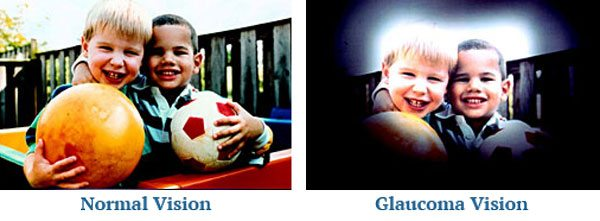 Glaucoma Vision Examples - Eye Physicians of Northampton