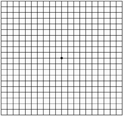 Amsler Grid - Eye Physicians of Northampton