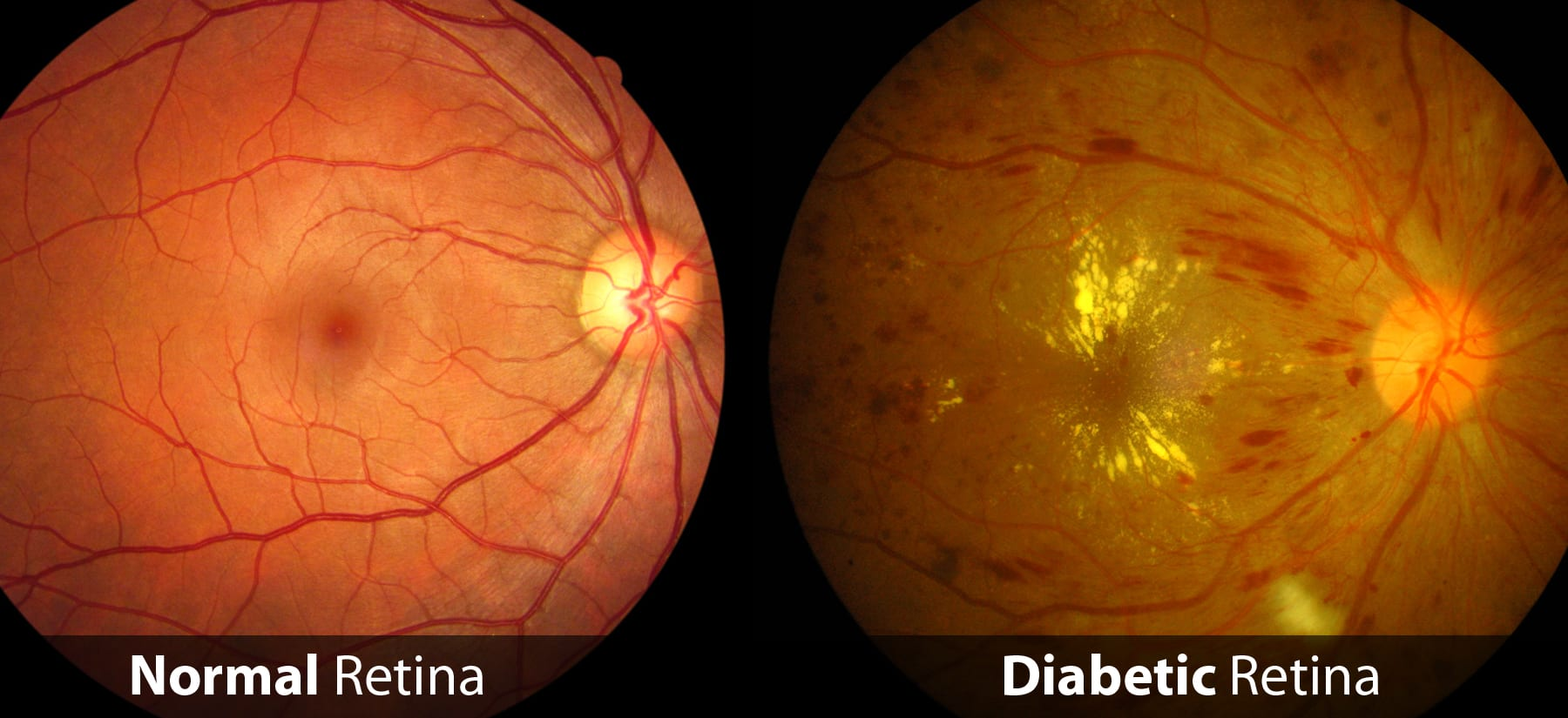 a photo comparing the look of a normal retina and a diabetic retina